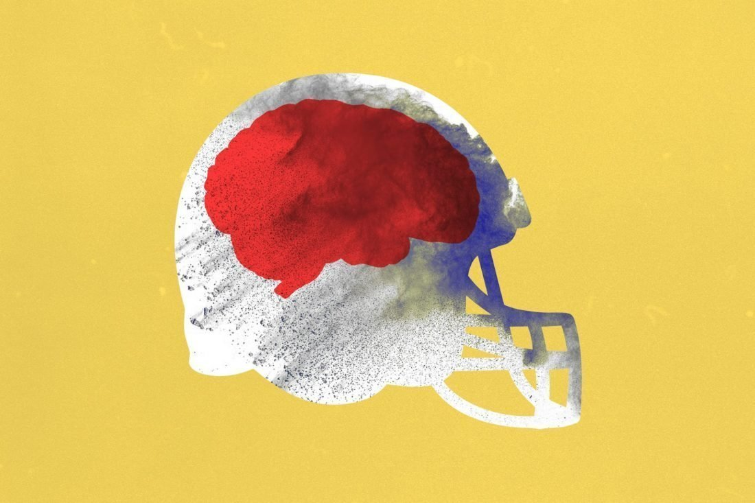 Illustration/collage of a football helmet with a red brain inside.
